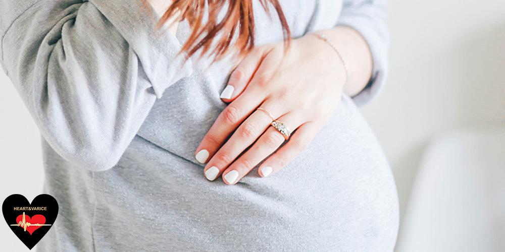 واریس بارداری چیست؟