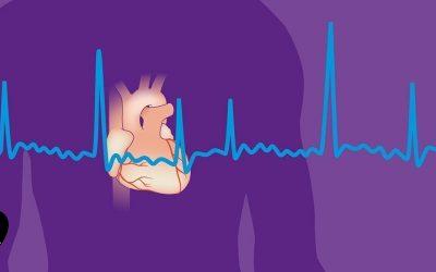 فیبریلاسیون دهلیزی و روش های درمان آن