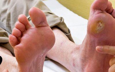6 راهکار موثر برای پیشگیری از زخم پای دیابتی