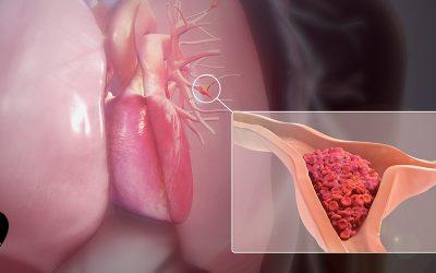 مواد غذایی مناسب برای پیشگیری از ترمبوز و آمبولی